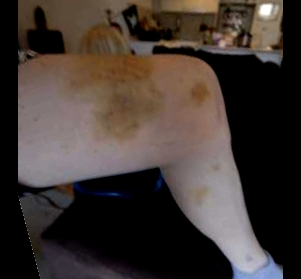 Indi Edwards' bruised thigh after police beating in her home