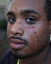 Jamar McLeod shows his facial knife wounds (Photo: NY Daily News)